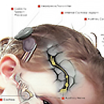 Science on Tap: Hybrid Cochlear Implants